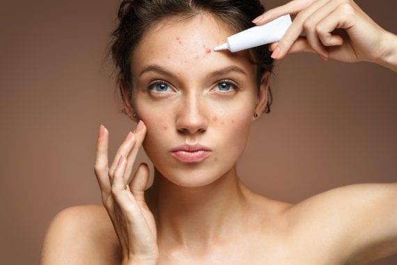 Acne behandeling - Helemaal Huid